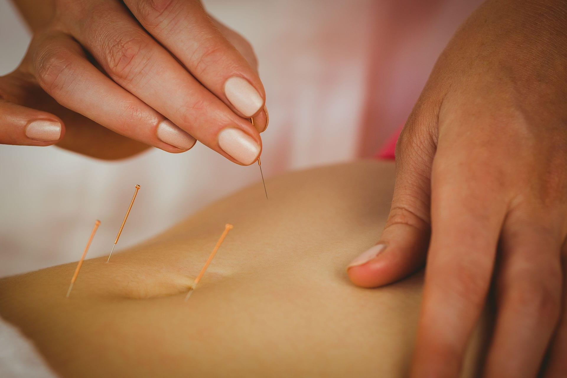 Yanky Ong Acupuncture 5